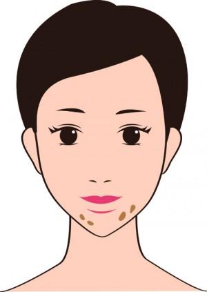 炎症後色素斑