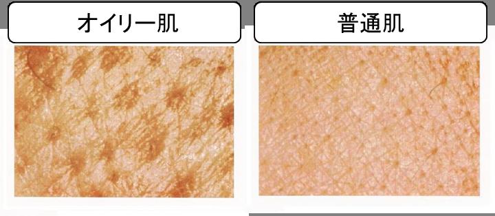 「オイリー肌の特徴」の画像検索結果