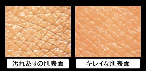 肌表面 (綺麗&汚れあり)