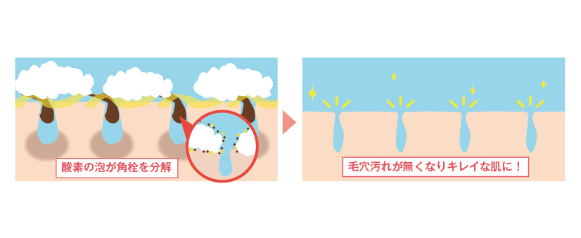 【酵素】鼻周りなどの毛穴の黒ずみ・角栓を除去