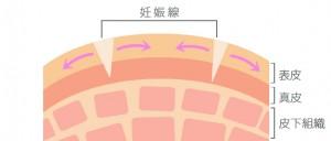 妊娠線と皮膚の図