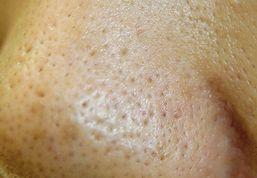 鼻毛穴黒ずみ メラニン