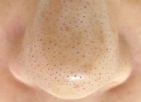 鼻毛穴黒ずみ うぶ毛