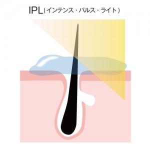 脱毛 IPL
