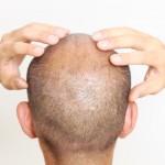 発毛促進入門!発毛のための正しいツボ押し方法と手順