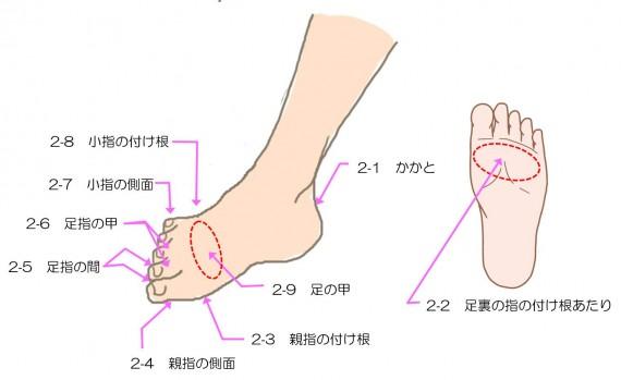 靴擦れ部位r