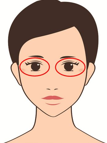 黒目 大きく 眼輪筋