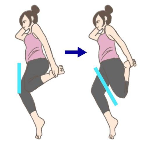 膝の痛み01rr