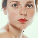 赤ら顔の原因は?種類と予防対策について
