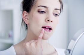 唇 荒れる 原因