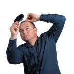 禿げる原因は5つ!禿げる人と禿げない人の違いと予防法を紹介
