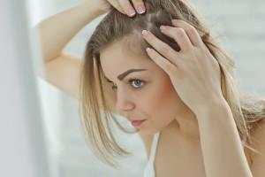 髪の毛 チリチリ