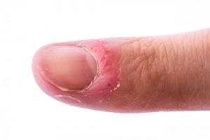 深爪 原因(3)