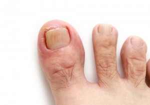 爪 ボロボロ 原因3