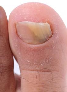 爪 ボロボロ 原因1