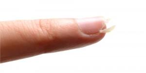 爪 ボロボロ 原因18
