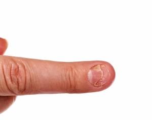 爪 ボロボロ 原因17