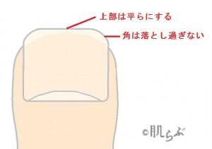 巻き爪 原因