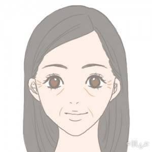 老け顔 特徴_シワ