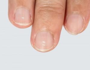 爪 ボロボロ 原因4