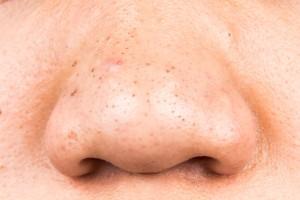 鼻 ザラザラ 1