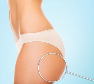 陰部 ニキビ 予防 対策 原因 毛嚢炎 炎症