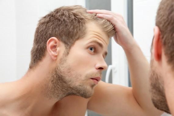 育毛剤 おすすめ ランキング 頭皮ケア 薄毛 抜け毛 脱毛 効果 使い方
