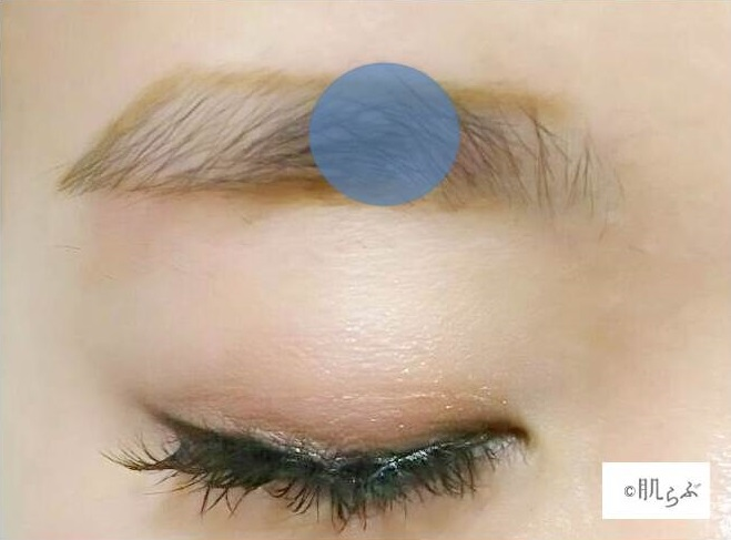 眉毛枠内の毛が濃い箇所をチェック画像