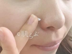 鼻の横 毛穴 角栓 黒い ぶつぶつ 詰まり 黒ずみ 開き