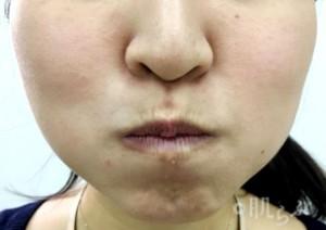 老け顔 特徴_頬筋エクササイズ1