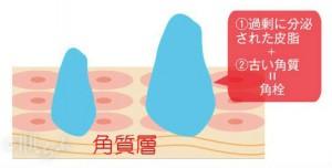 角栓(角質層・ロゴ入り)