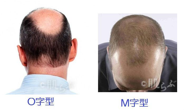 薄毛 予防 はげ 種類