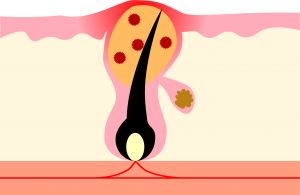 アクネ菌による炎症