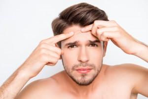 メンズ 化粧水 おすすめ スキンケア ニキビ