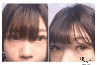 前髪のセルフカット比較