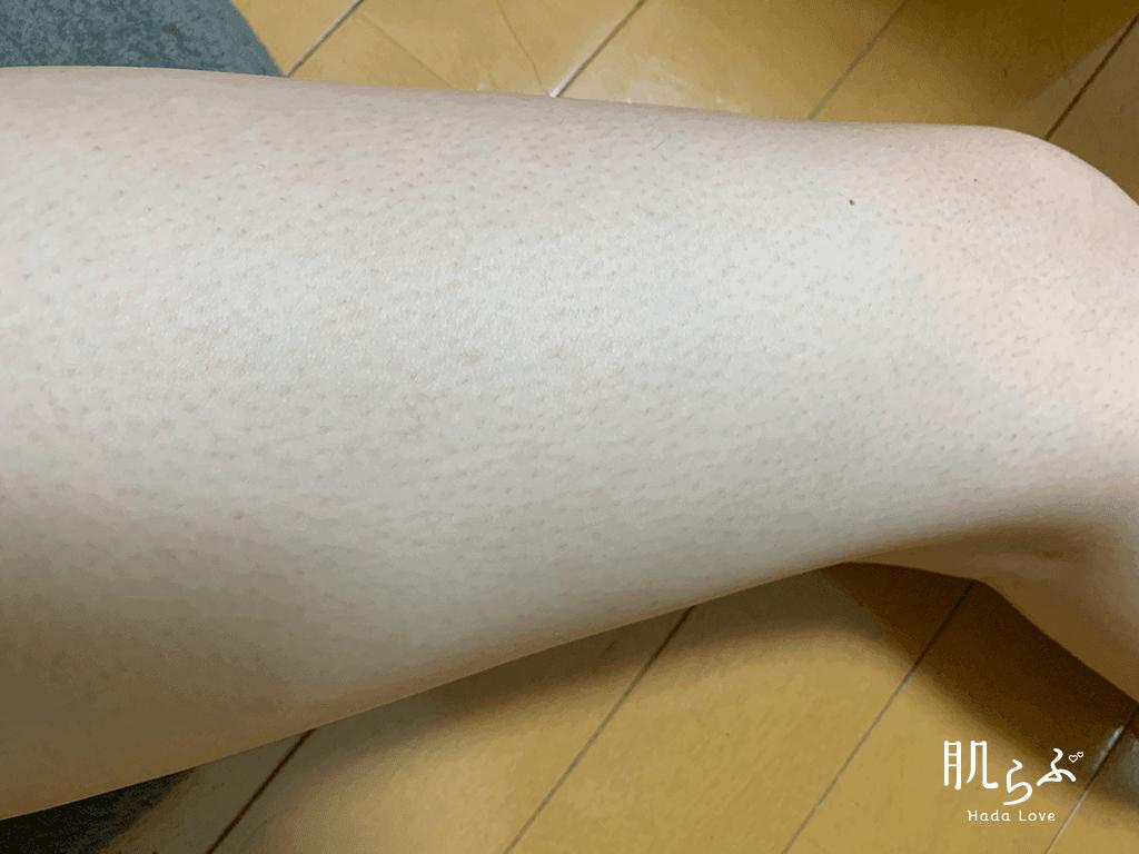kmyu除毛クリームで処理が終了した後の肌