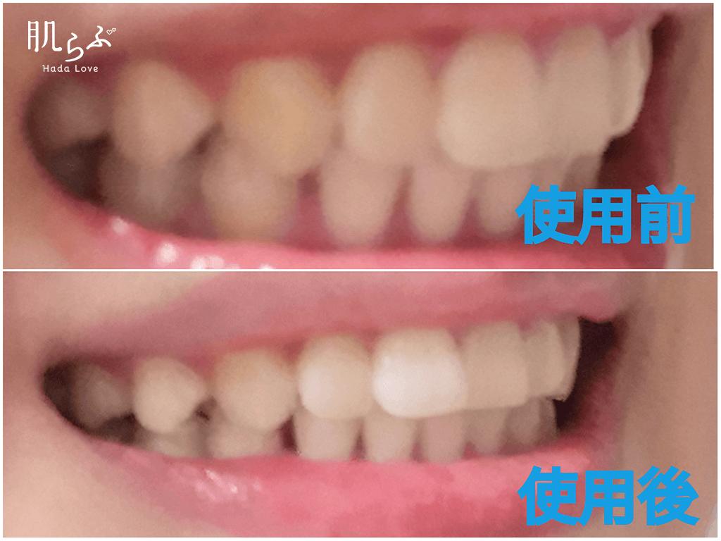 ポリリンキューブを使ってみた歯の側面の効果