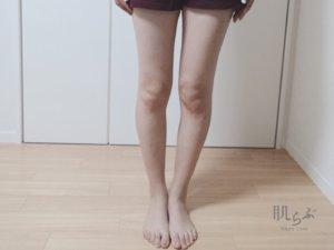 今の脚の状態